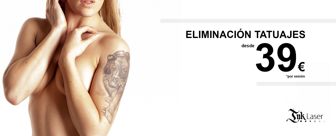 Quitar tatuajes Valencia Ink Láser