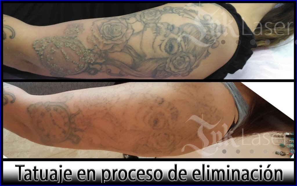 Cover up tattoo Alicante