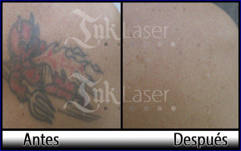 Quitar tatuajes a color en Ink láser