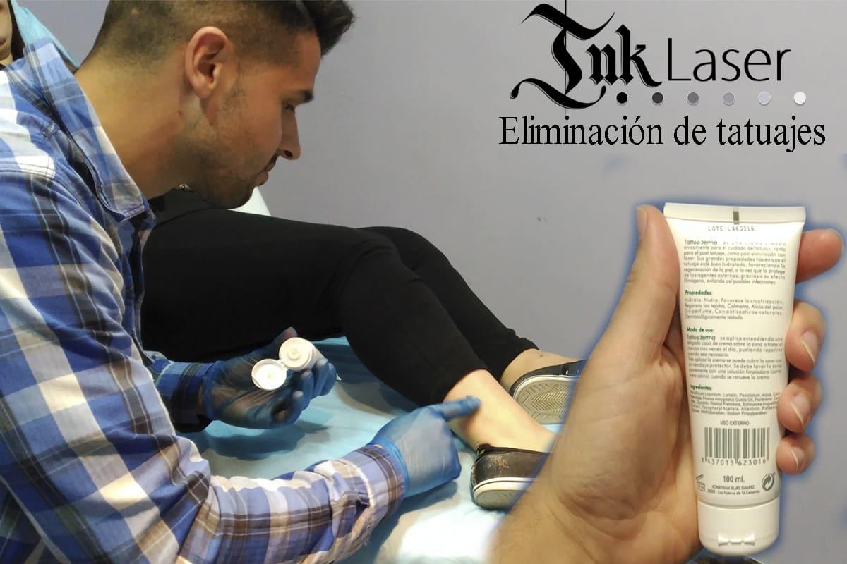 Como curar un tatuaje después de una sesión láser