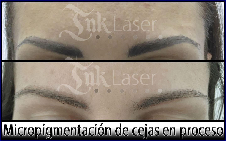 Resultados de borrar micropigmentación de cejas