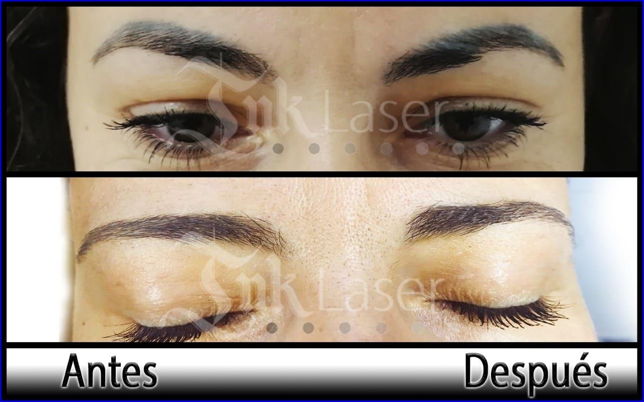 Eliminar micropigmentación de labios