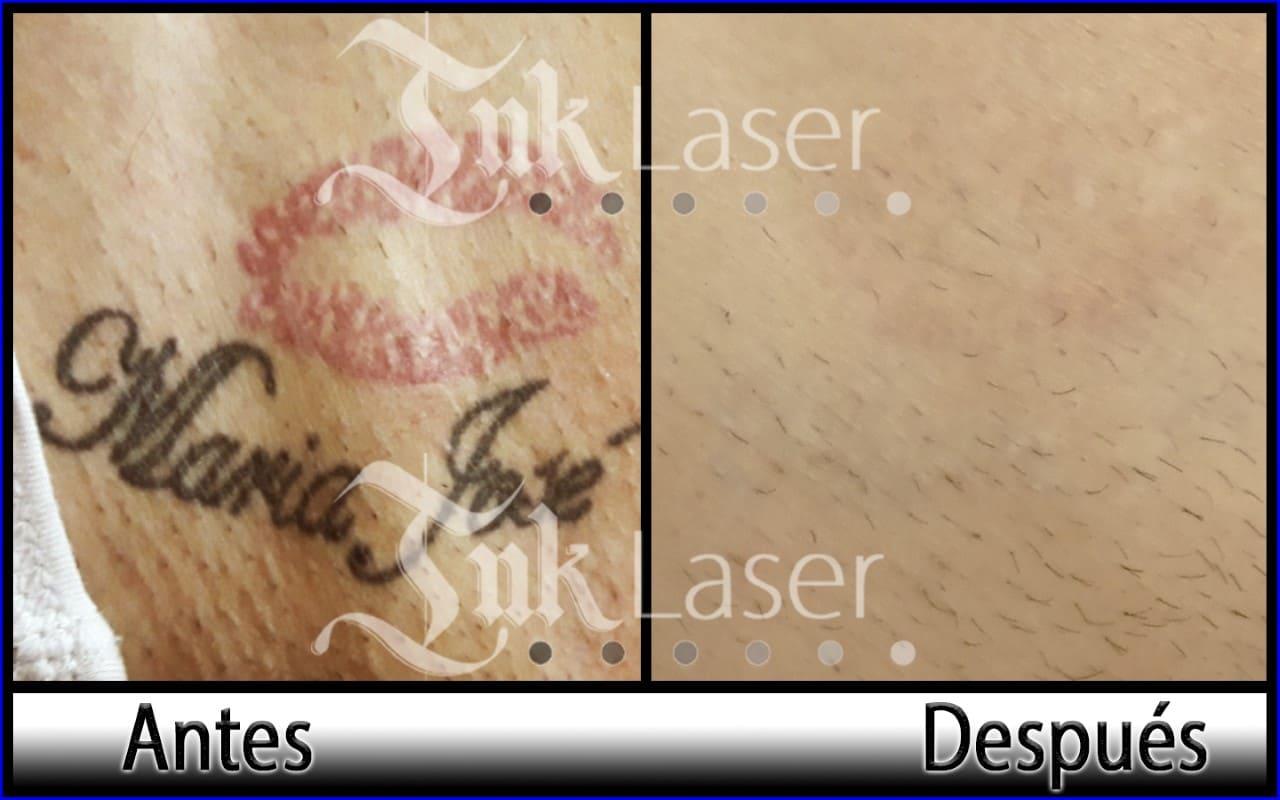 Resultado de quitar tatuajes con láser