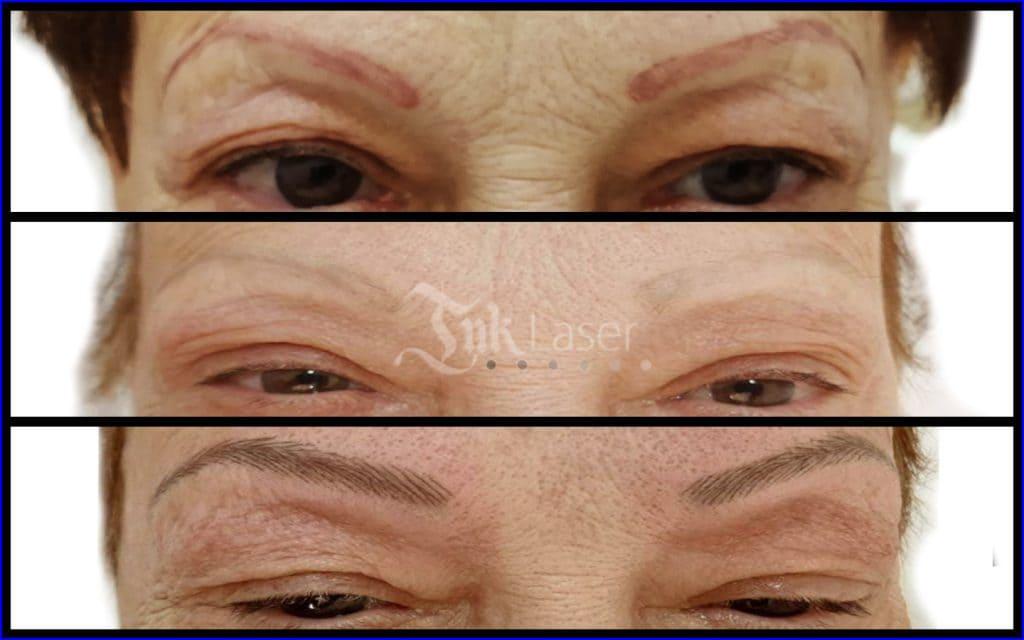 Resultado de eliminar micropigmentación con láser