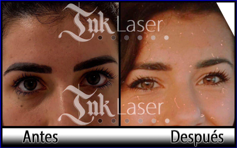 Eliminar micropigmentación de cejas en Alicante con láser