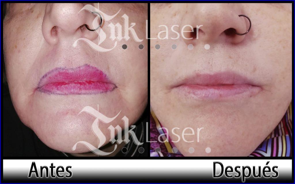Resultado de quitar micropigmentación de labios con láser