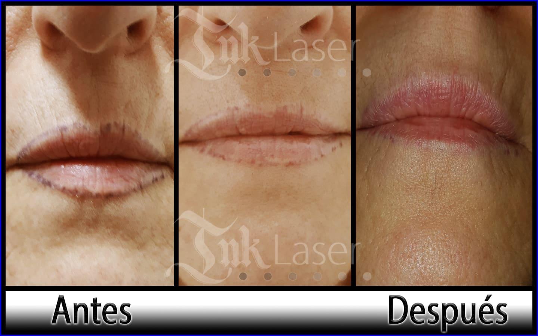 Quitar micropigmentación de labios con láser en Alicante