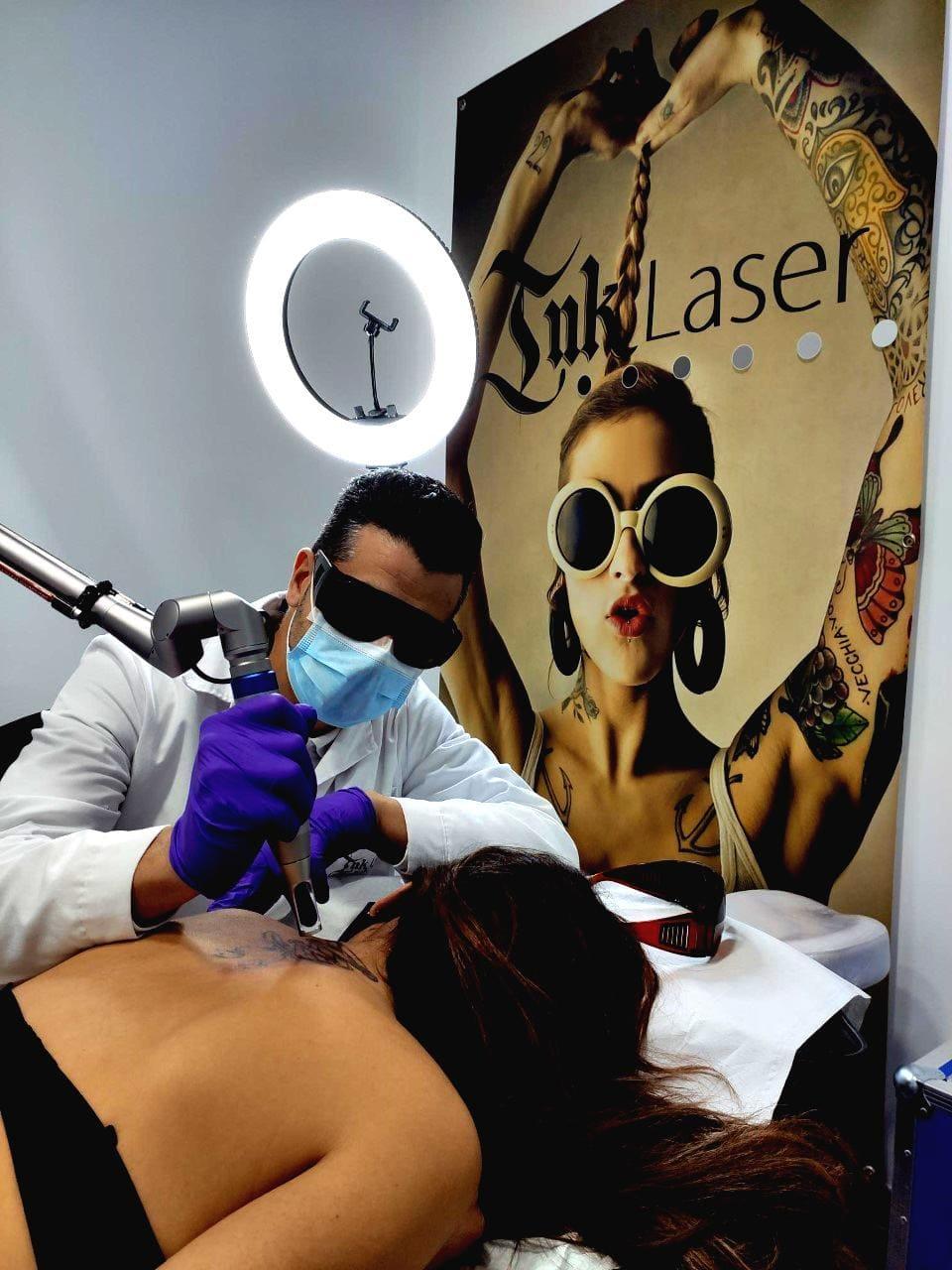 Eliminar tatuajes Alicante